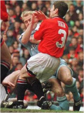 David Busst's injury